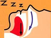 snoring_img02